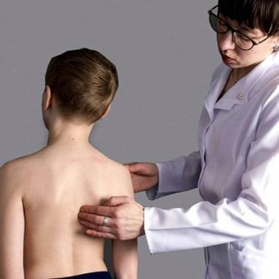 Остеохондропатии у детей. Болезнь Шейермана Мау.  Массаж, гимнастика, лечение